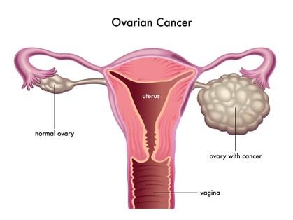 Cara Merawat Kanser Ovari